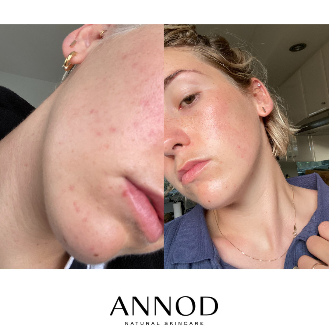 Our customer's before and after results of using Balancing Lavender Face Oil