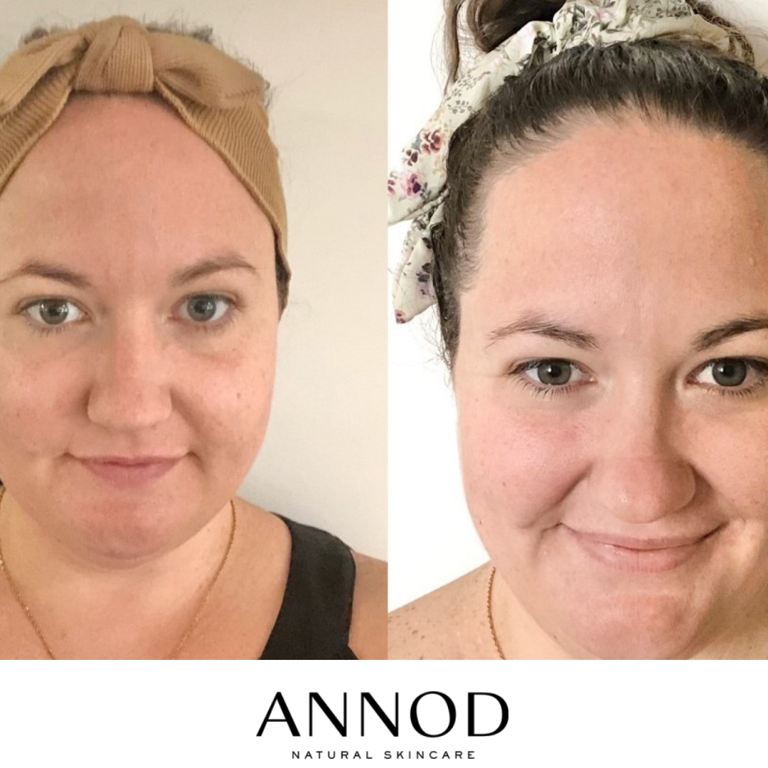 Before and After reuults of Annod'sustomer after using Moisturising Rose Face Oil customer